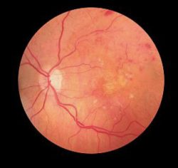 Retina Showing Diabetic Retinopathy